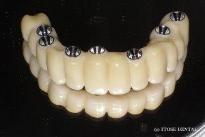 上顎全体のインプラント治療2