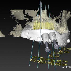 上顎の全体的インプラント症例2