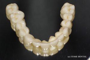 下顎臼歯部インプラント部分症例2