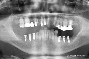 下顎臼歯部インプラント部分症例1