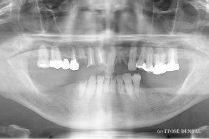 下顎インプラント