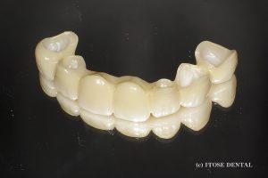 大分の審美歯科セラミック