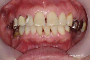大分での審美歯科の治療前