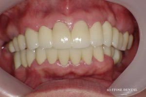 大分での審美歯科の治療後