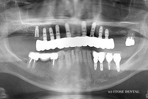 多数歯欠損2
